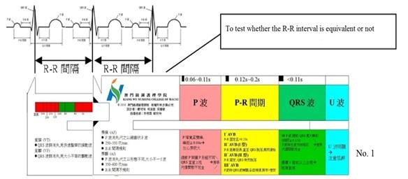 Electro-cardiograph-Ruler-1-eng