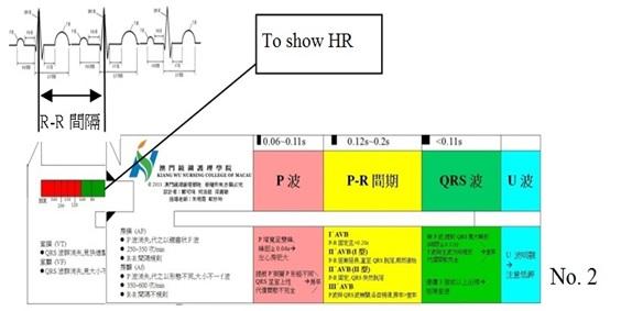 Electro-cardiograph-Ruler-2-eng