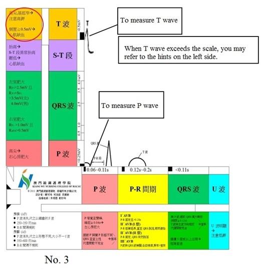 Electro-cardiograph-Ruler-3-eng